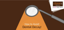 How to avoid dental decay
